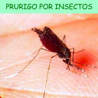 Enfermedad de la piel que tiene origen variado: alérgica, trastornos del aparato digestivo y picaduras de insectos.